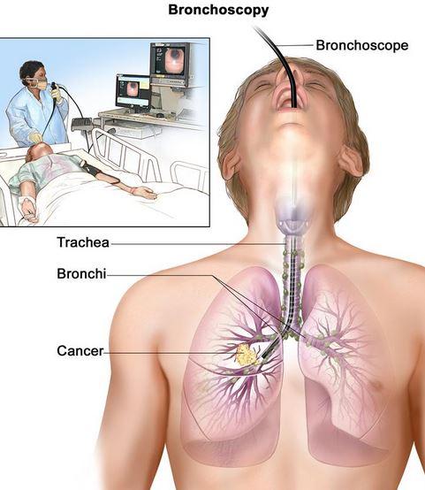 akciger-kanseri-belirtileri.jpg
