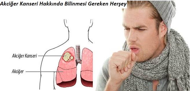 Akciğer-Kanseri-Hakkında-Bilinmesi-Gereken-Herşey-45436.jpg