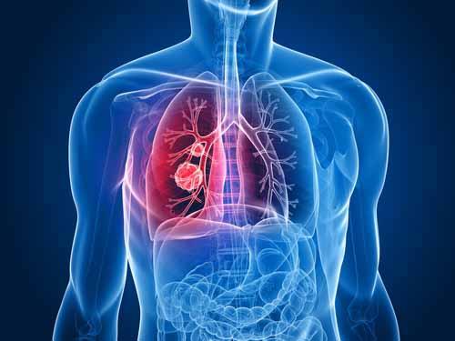 akciger-kanseri-tedavisinde-iyi-sonuc-veren-ozel-tedavi-yontemleri-var.jpg