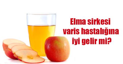 elma-sirkesi-ile-varis-tedavi.png