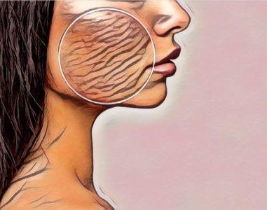 Atopik Dermatit Tedavisi Egzama