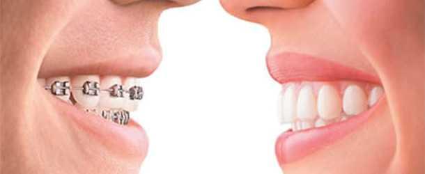 Dişleri telsiz düzeltme ortodontik