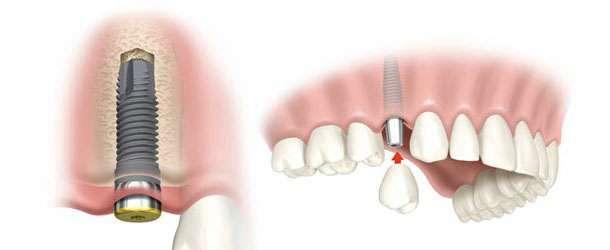 Sahte implant