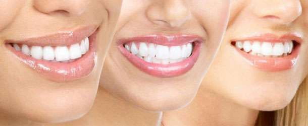 Telsiz çarpık diş tedavisi