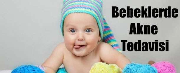 Bebeklerde Akne Tedavisi Nasıl Yapılır 10