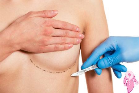 cipli implant ile gogus buyutme kk (3)