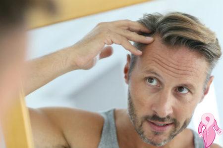 saç dökülme erkek