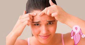 Akne vulgaris nedir ve nasıl oluşur?