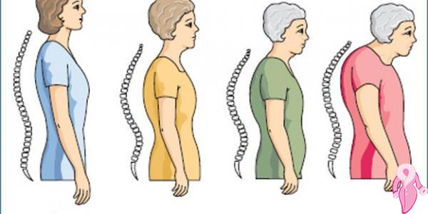 Osteoporoz Diyeti Nasıl Yapılır?