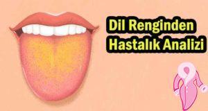 Dil Renginden Hastalık Analizi