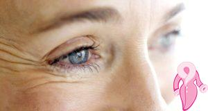 Göz Kırışıklıkları Nasıl Giderilir?