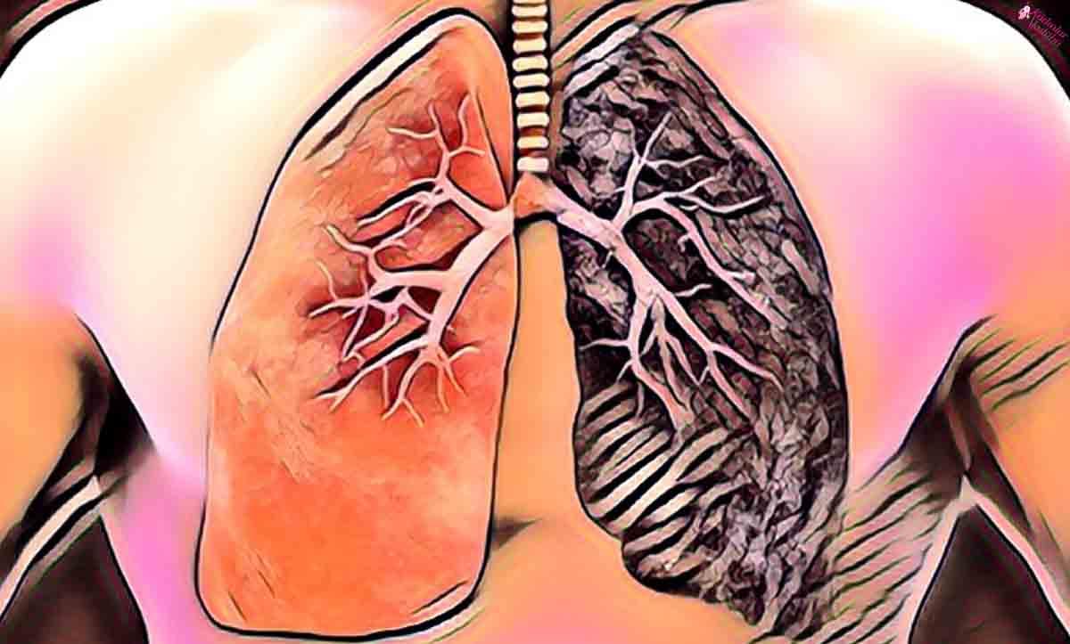 küçük hücreli akciğer kanseri