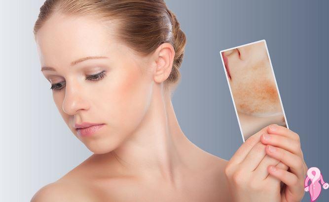 Akne izlerinin tedavisi