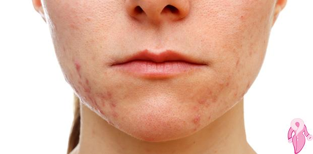 Hormon Bozukluğu Belirtileri Nelerdir?