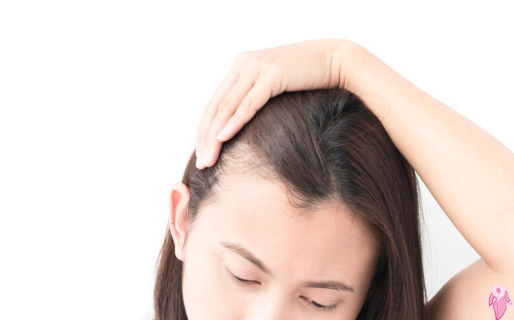 Saç Dökülmesi Hangi Vitamin Eksikliğinde Görülür?