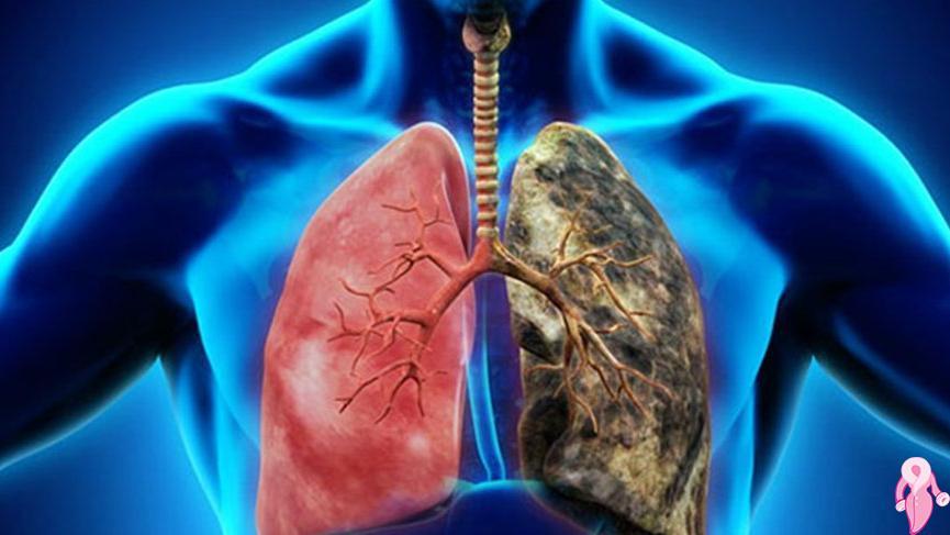 Akciğer Kanserinin İlk Belirtileri Nelerdir, Nasıl Anlaşılır?